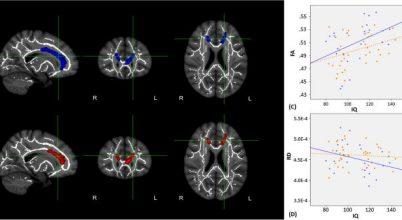 Férfi és női agy más képet mutat?