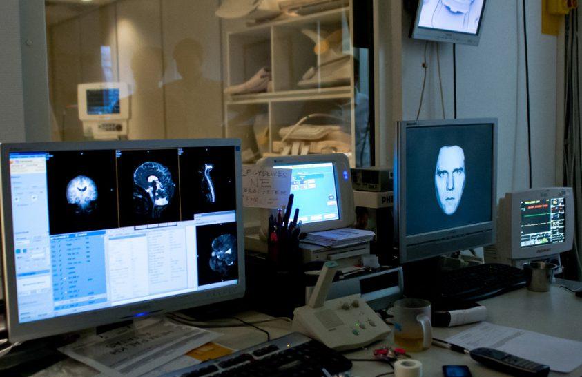 Mi okozhatja a migrént?