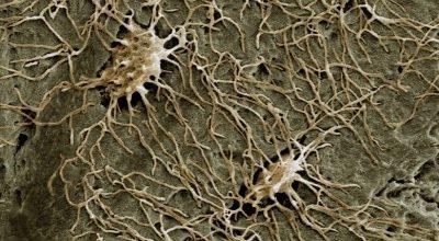 Csontsejtek intelligenciája