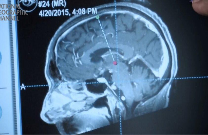 Élőben közvetített agyműtétet a NatGeo