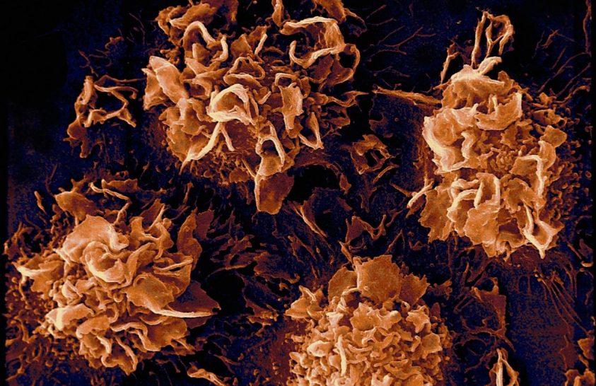 Rafinált módszer a tumorsejtek ellen
