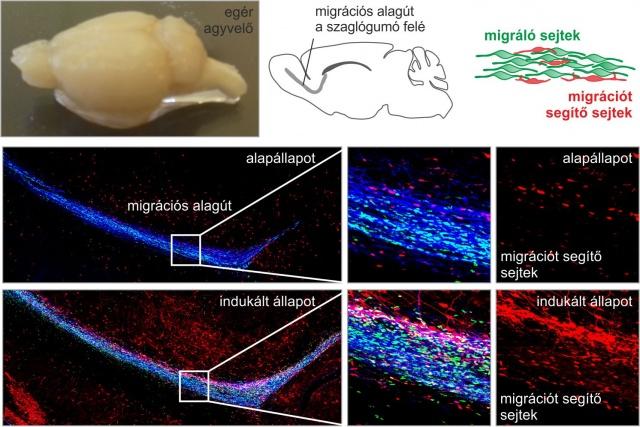 Magyar kutatók felfedezése segítheti az agysérülések gyógyítását