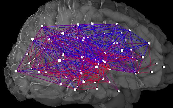 Villamosmérnöki szempontból a női agy összeköttetései jobbak