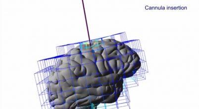Virtuális legókockákból építettek agyat