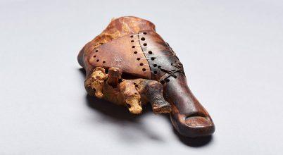 Az ókori egyiptomiak is használtak protézist