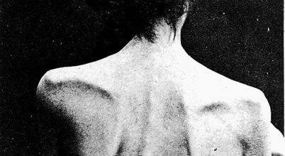 A gének is felelhetnek az anorexiáért