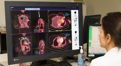Sikert hozott egy magyar kutató rákdiagnosztikai szoftvere