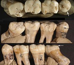Már a neandervölgyiek is ápolták fogaikat
