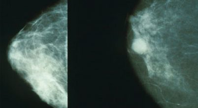 Rengeteg a mellrákos fiatal nő Kínában