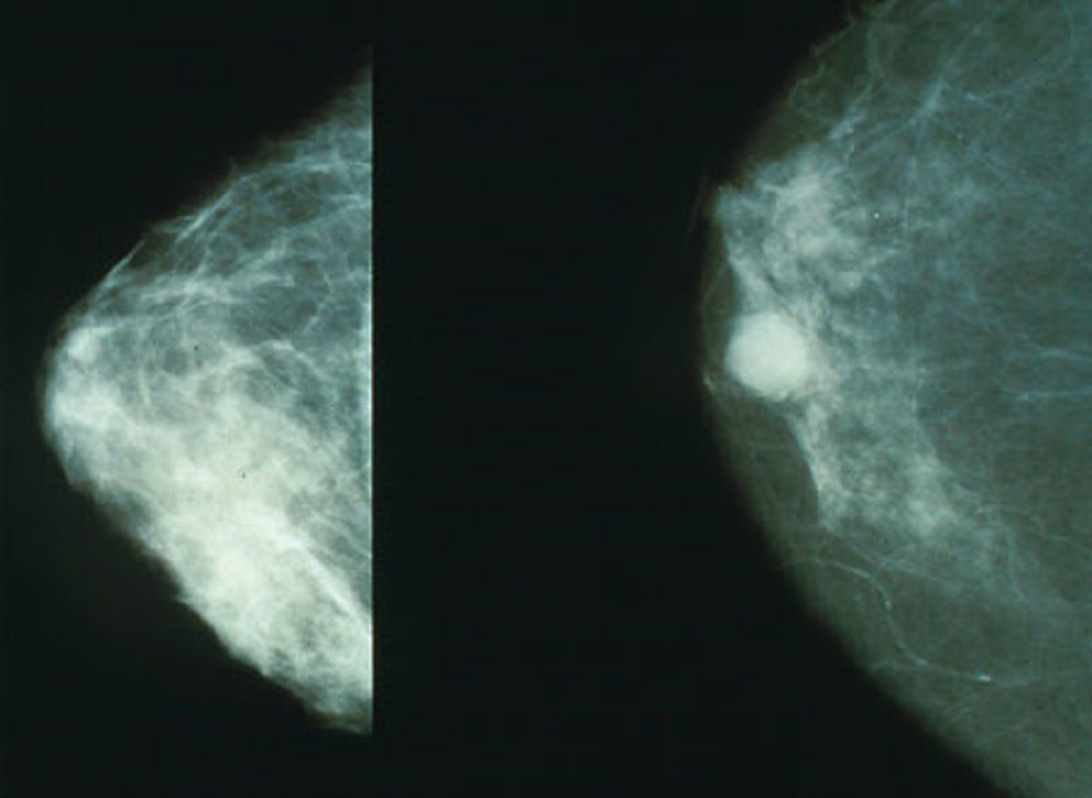 Fiatalkori mellrák: 16 kemoterápián van túl Szűcs Adriána modell