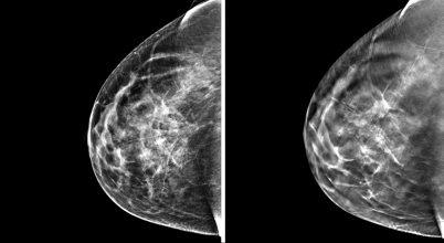 Kiterjedtebb tumor alakulhat ki a túlsúlyos nők mellében
