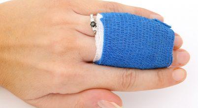 Gyorsabban gyógyulnak a nappal szerzett sérülések