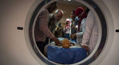 Múmiákban fedezték fel a mellrák és mielóma legkorábbi nyomát