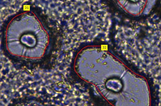 Mikroszkóp és mesterséges intelligencia a hatékonyabb daganatgyógyításért