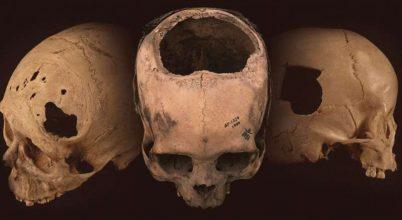Jobbak voltak az inka gyógyítók mint az polgárháború sebészei?