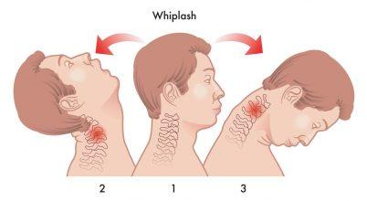 Az agyrázkódás esélye függhet a fej és nyak pozíciójától