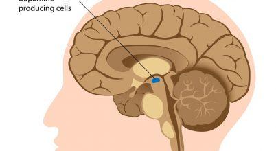 """Különleges """"agyi pacemakert"""" fejlesztettek ki amerikai kutatók"""