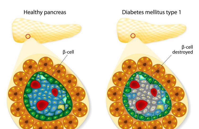 Újabb lehetőség a cukorbetegség gyógyítására