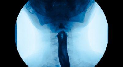 A nyelőcsőben lévő mutáns sejtek nem biztos, hogy rákot okoznak