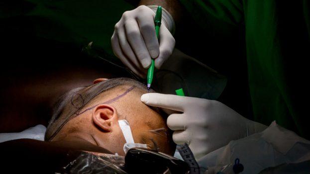 A bangladesi sziámi ikrek újabb műtéten vannak túl
