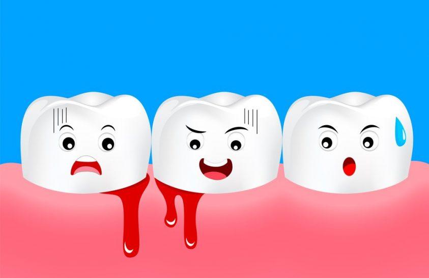 Nem is gondolnánk, milyen problémát okozhat a fogágybetegség