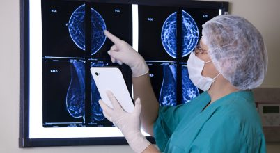 Mesterséges intelligencia a rákdiagnosztikában