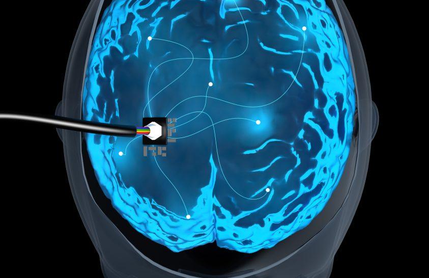 Újfajta elektródák vihetik előre az idegtudományt