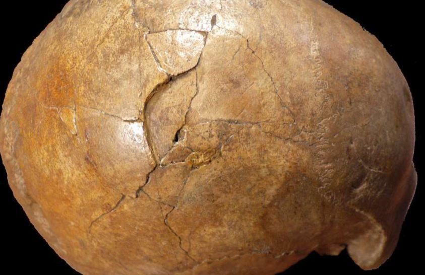 A koponya sérülései egy korabeli gyilkosságra utalhatnak