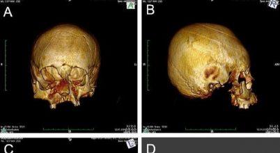 Eldeformált népvándorlás korabeli koponyára bukkantak Horvátországban