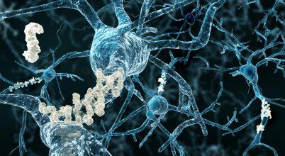 Összefüggés az Alzheimer-kór és az agyi immunsejtek között