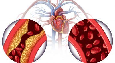 Az infarktus előrejelzésének kutatása