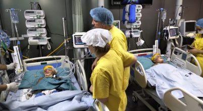 Magyar orvoscsapat vezetésével választották szét a fejüknél összenőtt ikreket