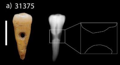 Emberi fogakat használtak ékszerként egy ősi város lakói
