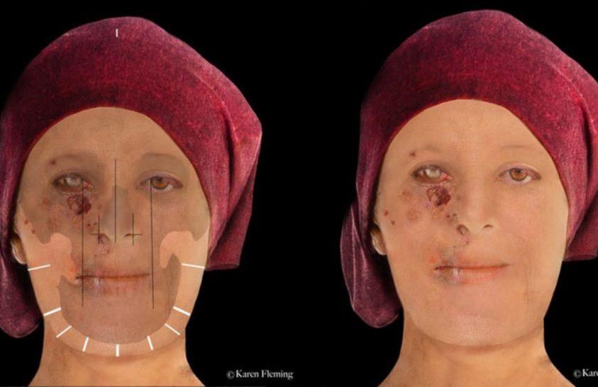 500 éves leprás beteg arcát rekonstruálták