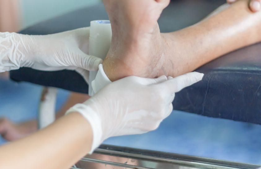 Diabéteszes sebek gyógyítására alkalmas hazai új készítmény