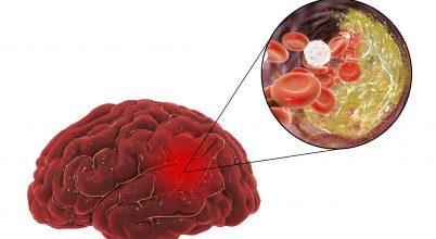 Stroke-hálózat segíti a betegek hatékonyabb kezelését