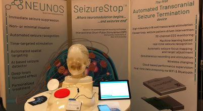 Magyar fejlesztésű agyi defibrillátorral állítják le az epilepsziás rohamokat