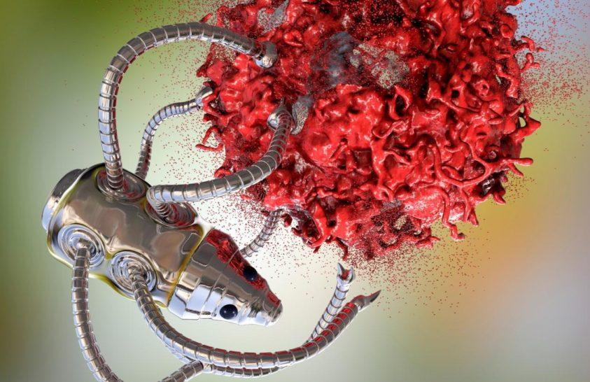 Nanotechnológia segíthet a bélrák gyógyításában