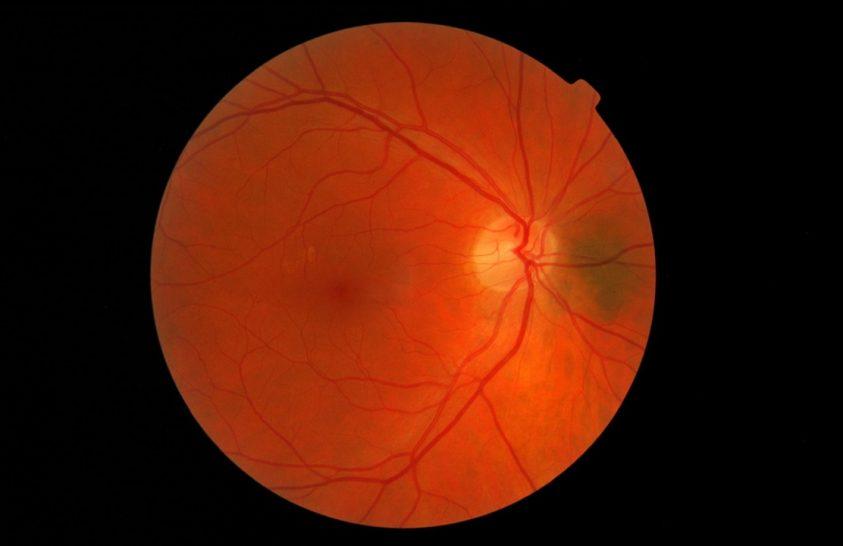Új kezelés segíthet visszaadni egyes vakok látását