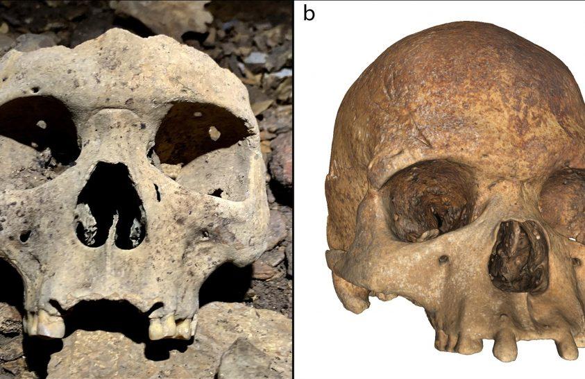 Kihúzott fogakról árulkodó koponyák
